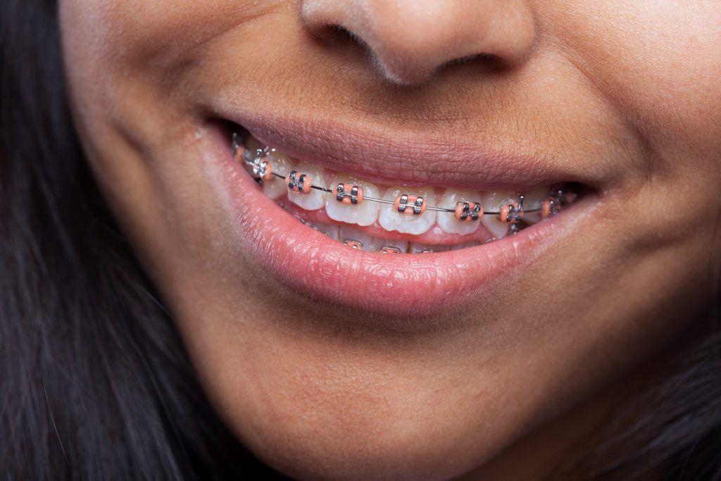 Foto paciente Didents com aparelho de ortodontia