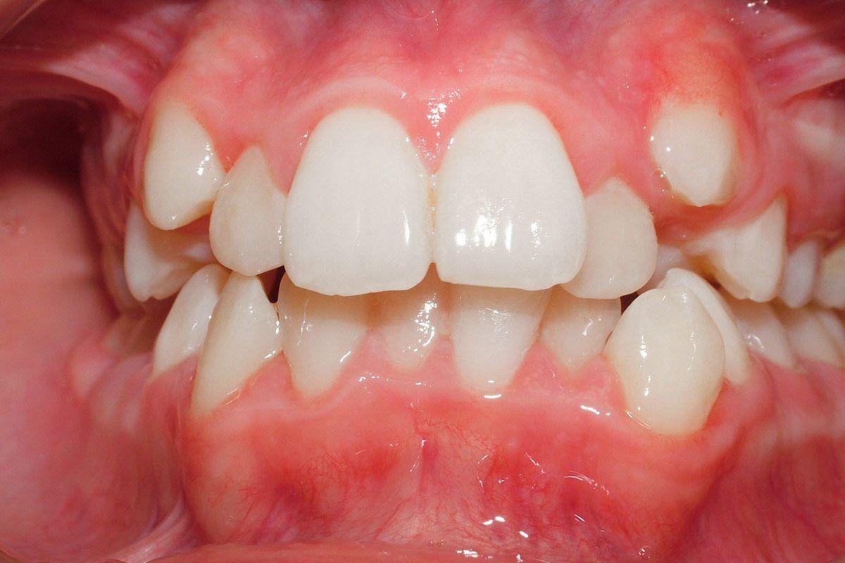 Tratamento Apinhamento Dentário