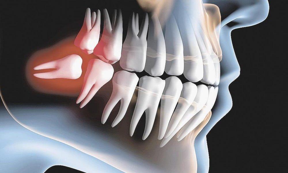 Extração do Dente do Siso, problemas que podem ocasionar o dente do Siso.